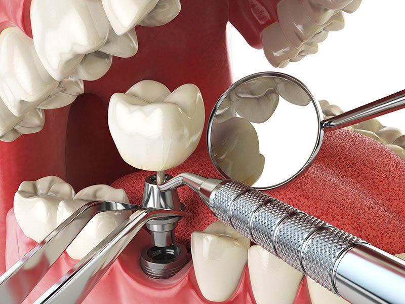 Implant | Century Smile Dental Practice | Culver City, CA
