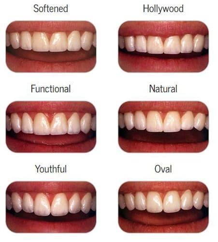Perfect Smile   Century Smile Dental Office   Culver City, CA
